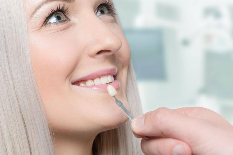 dental patient undergoing dental veneers procedure