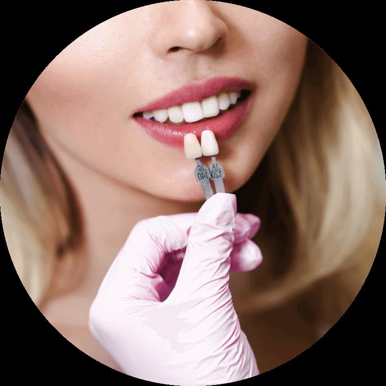 dental patient undergoing veneers procedure