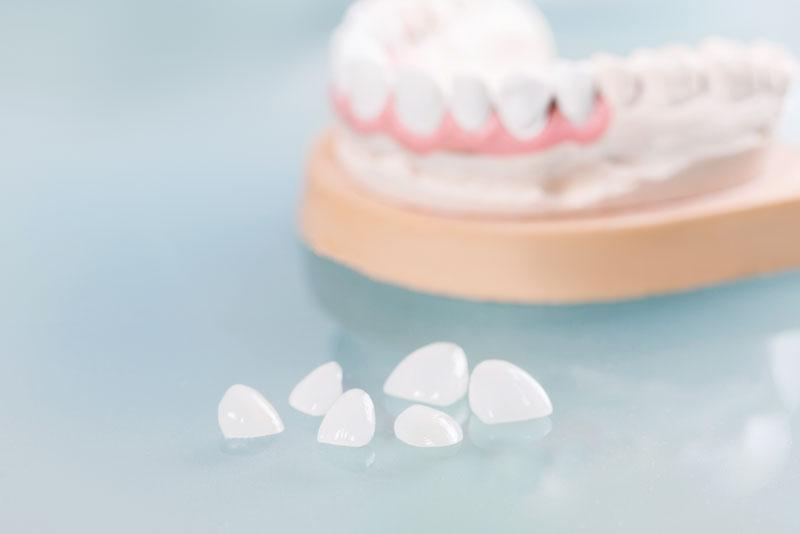 dental veneers model